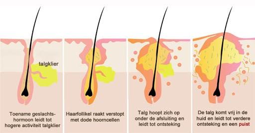 acne ontstaan